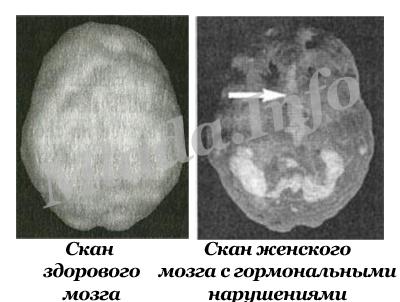 sex-brain2