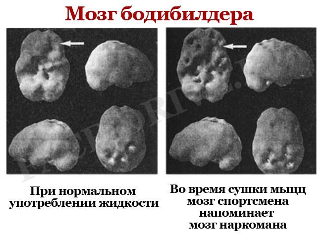 Мозг-бодибилдера