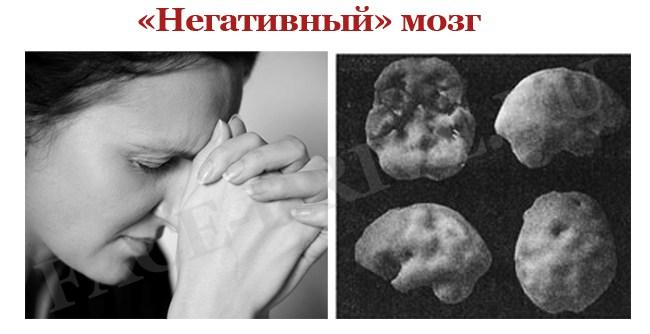 Мозг-негативиста