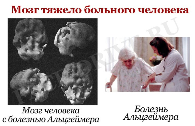 Мозг-тяжело-больного-человека