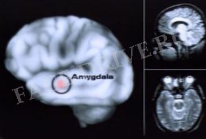 amigdala1